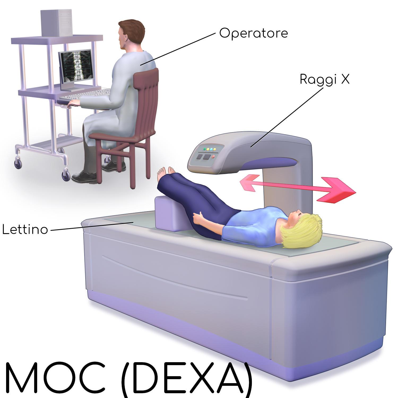 Disegno semplificato del dispositivo che consente l'esame MOC (DEXA)