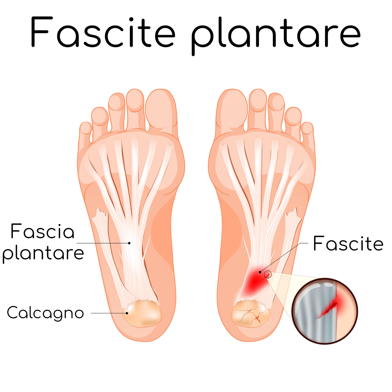 Anatomia semplificata della fascite plantare