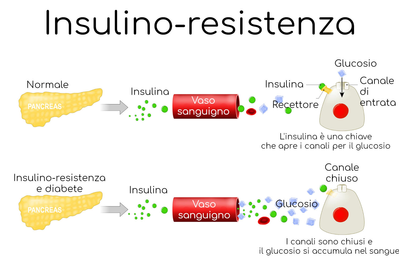 Meccanismo dell'insulino-resistenza