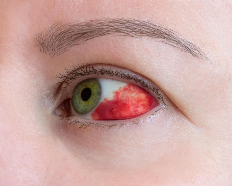 Primo piano di un occhio con capillare rotto