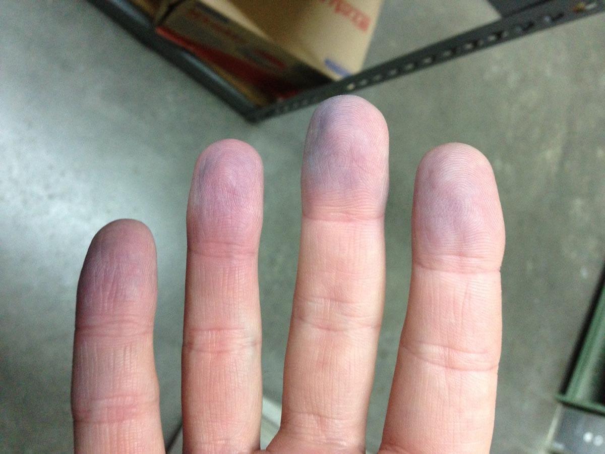 Cianosi sulle dita di una mano