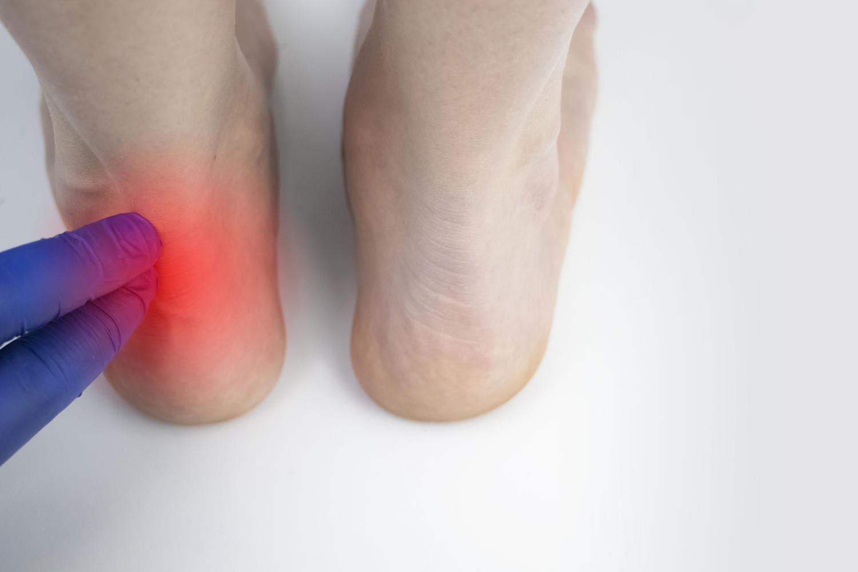 Medico palpa il tendine d'Achille provocando dolore