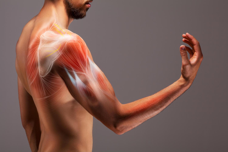 Muscoli del braccio disegnati in sovraimpressione