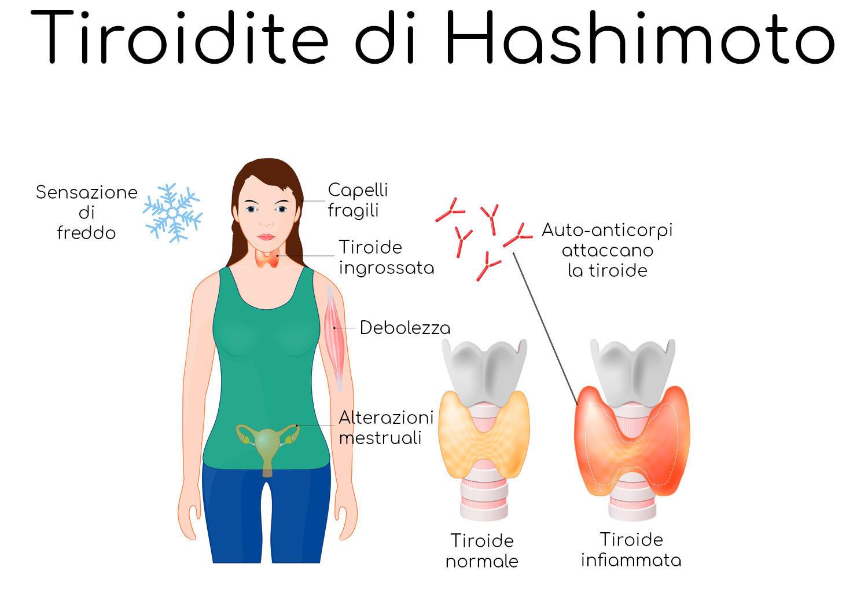 Infografica riassuntiva della tiroidite di Hashimoto