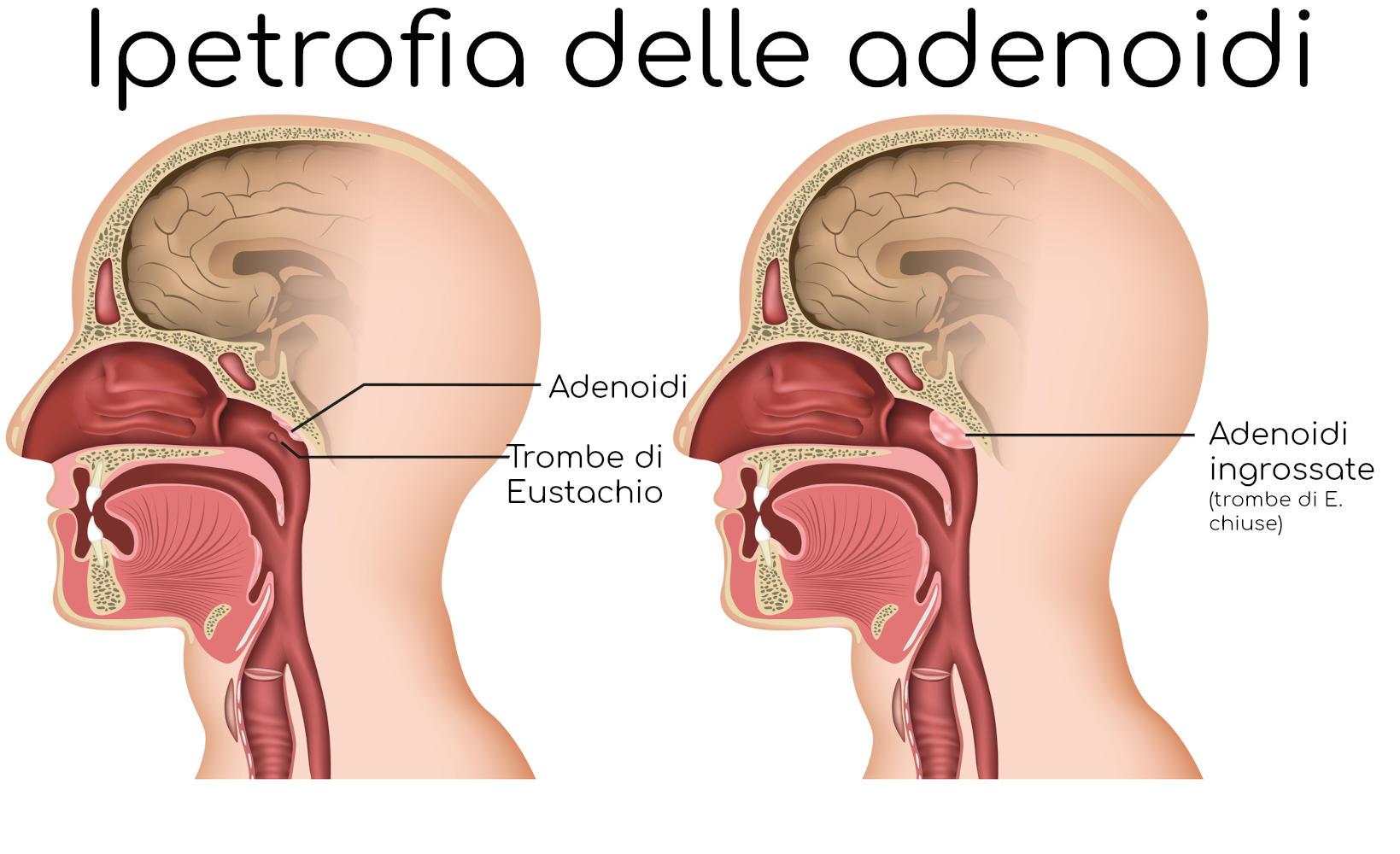 Anatomia semplificata dell'ipertrofia delle adenoidi