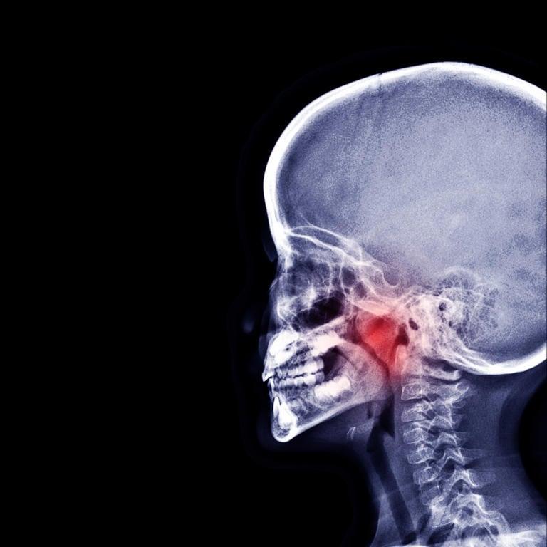 Referto radiografico per l'ipertrofia delle adenoidi