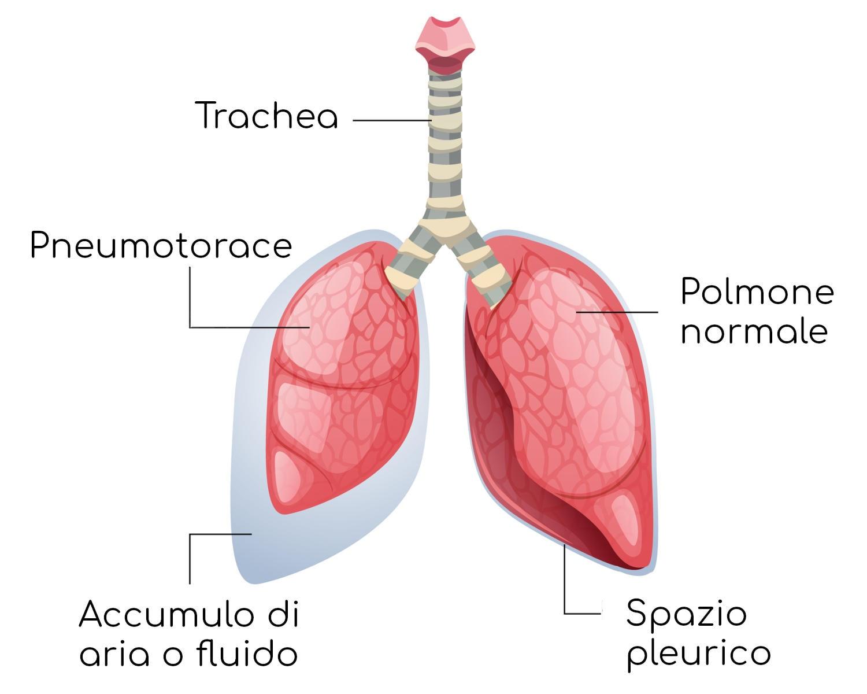 Esemplificazione dello pneumotorace