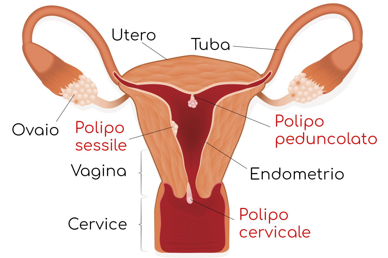 Polipi uterini