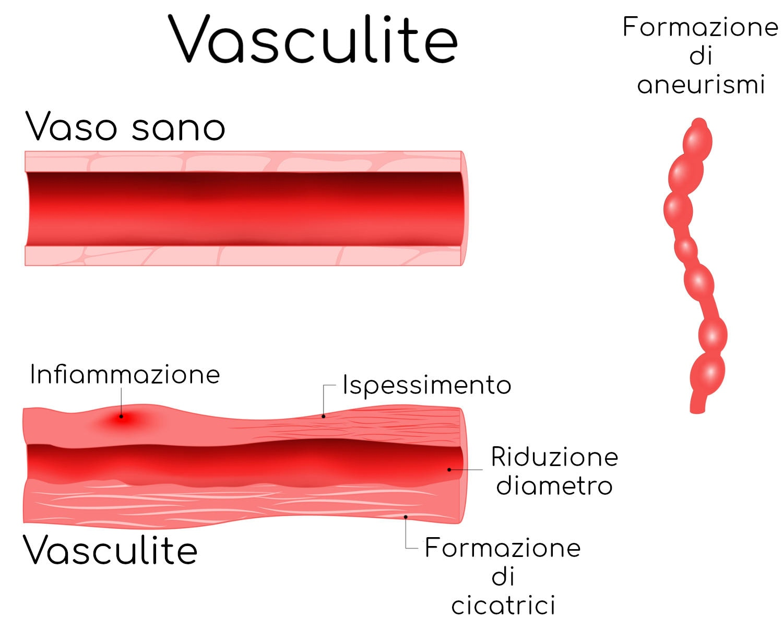 Vasculite e conseguenze sul vaso
