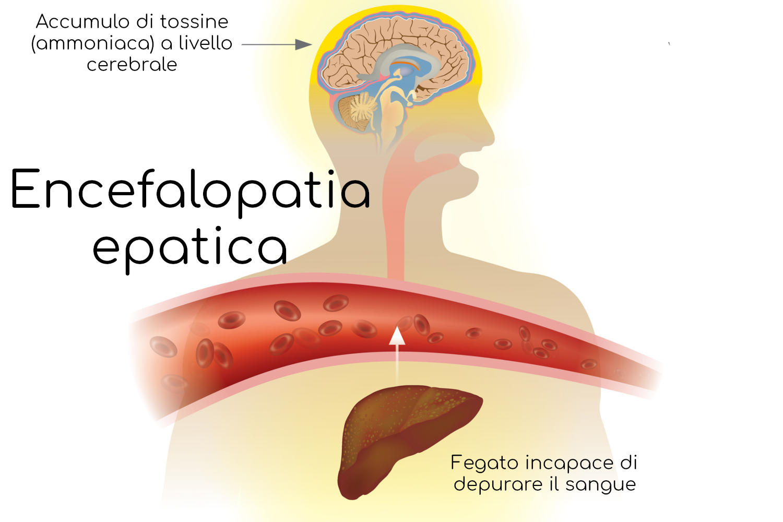 Meccanismo generale alla base dell'insorgenza di encefalopatia epatica
