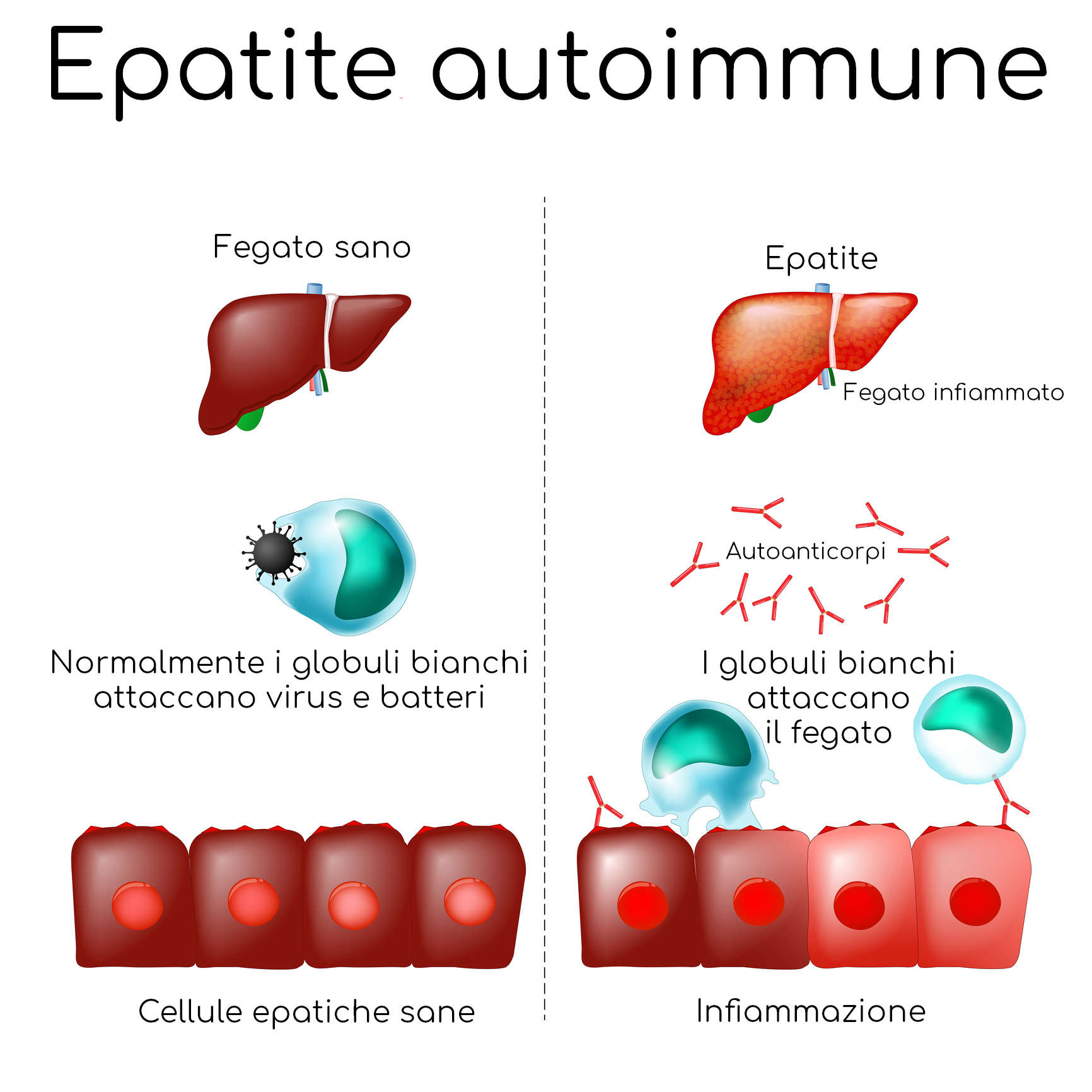 Semplificazione del meccanismo cellulare di attacco delle cellule epatiche nell'epatite autoimmune