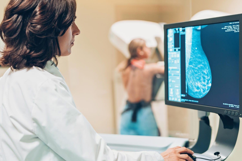 Donna che si sottopone a mammografia