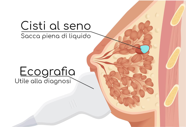 Cisti al seno ed ecografia per la diagnosi