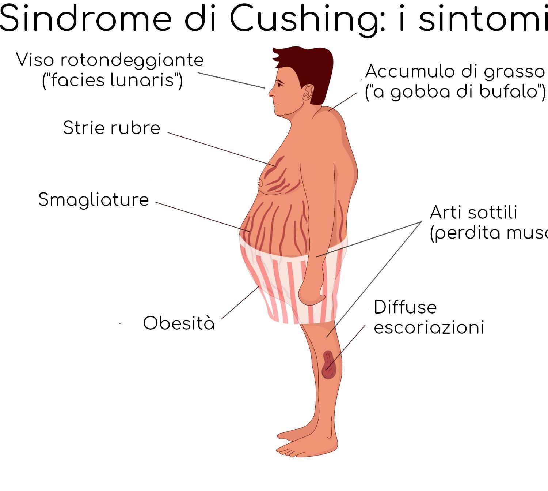 I sintomi della Sindrome di Cushing