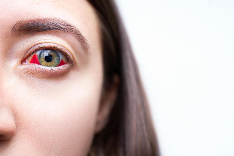 Capillare rotto nell'occhio di una donna