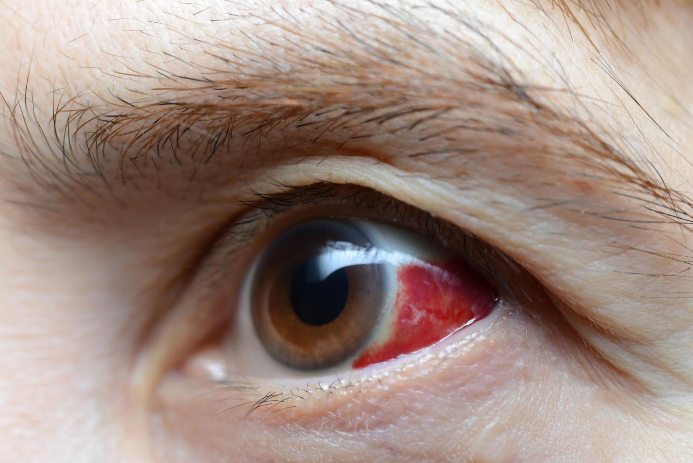 Emorragia subcongiuntivale nell'occhio di un uomo