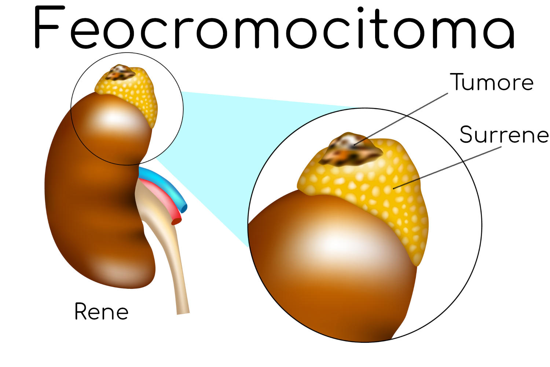 Feocromocitoma e surrene