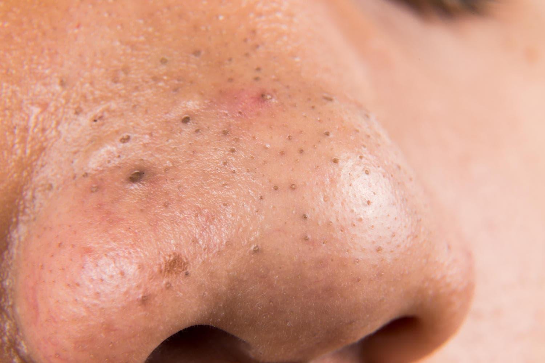 Punti neri sul naso di un adolescente