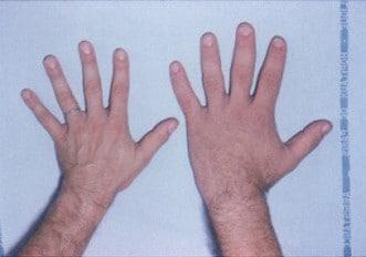 Acromegalia, cambiamento nelle mani