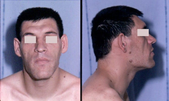 Acromegalia, sintomi del viso
