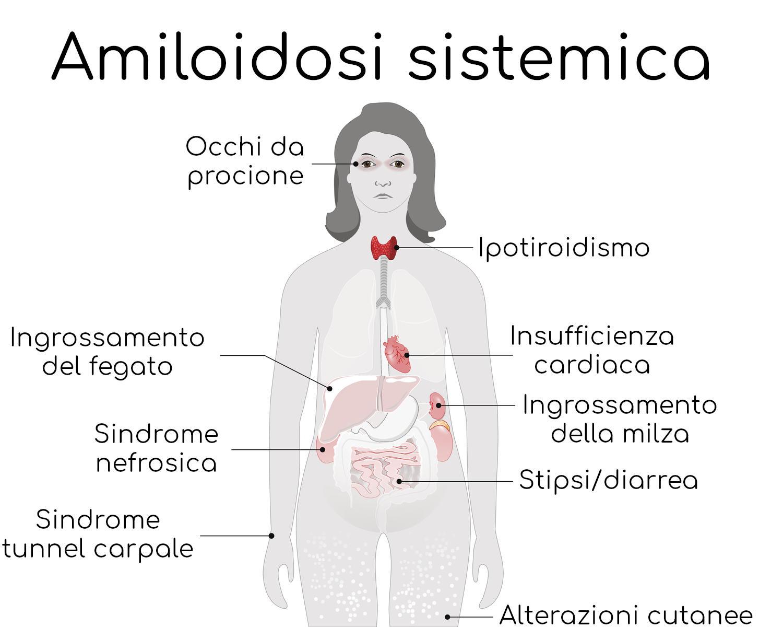 Amiloidosi Sistemica, i sintomi