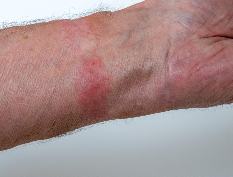 Dermatite allergica da contatto al cinturino dell'orologio