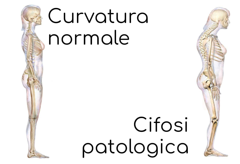 Cifosi patologica (ipercifosi)