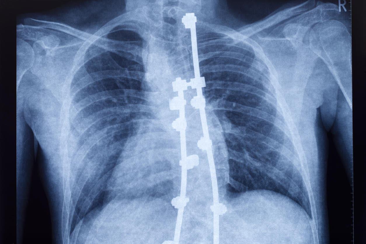 Scoliosi, correzione chirurgica