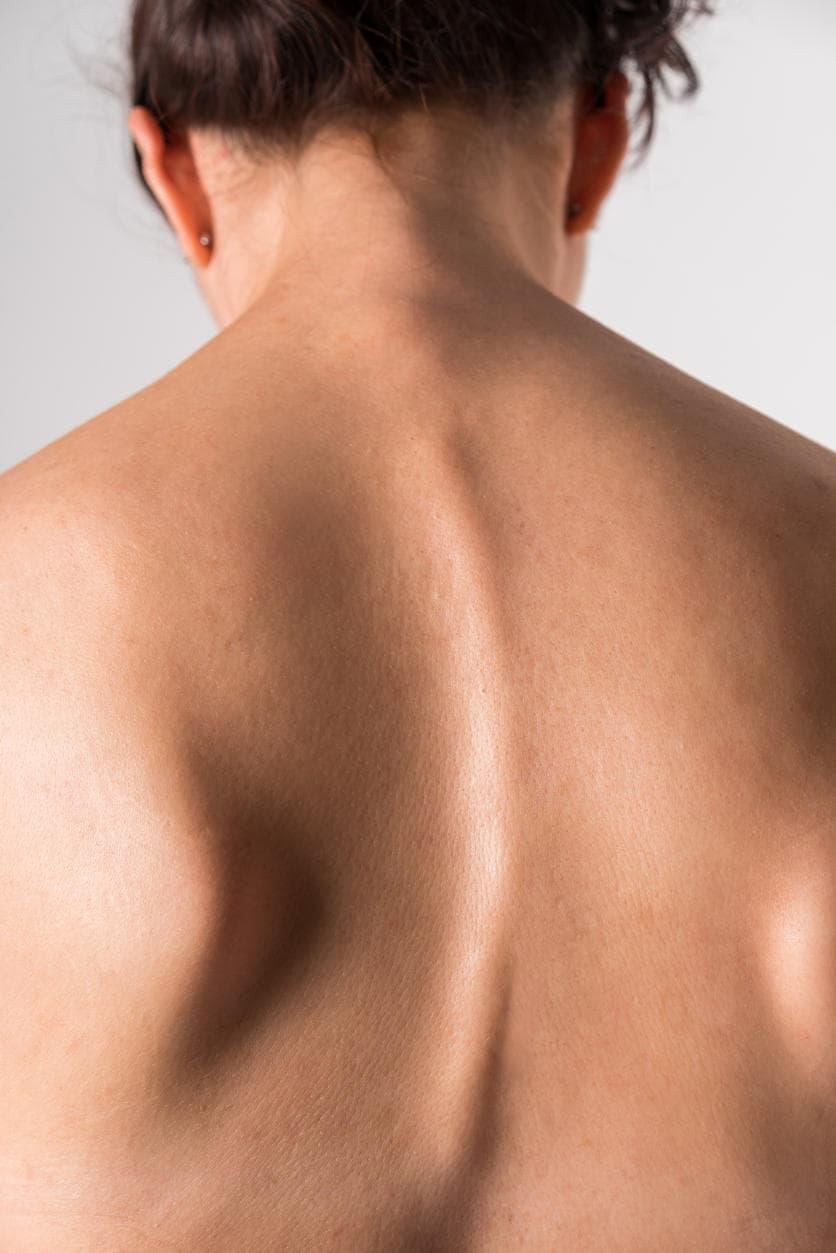 Scoliosi sulla schiena di una donna