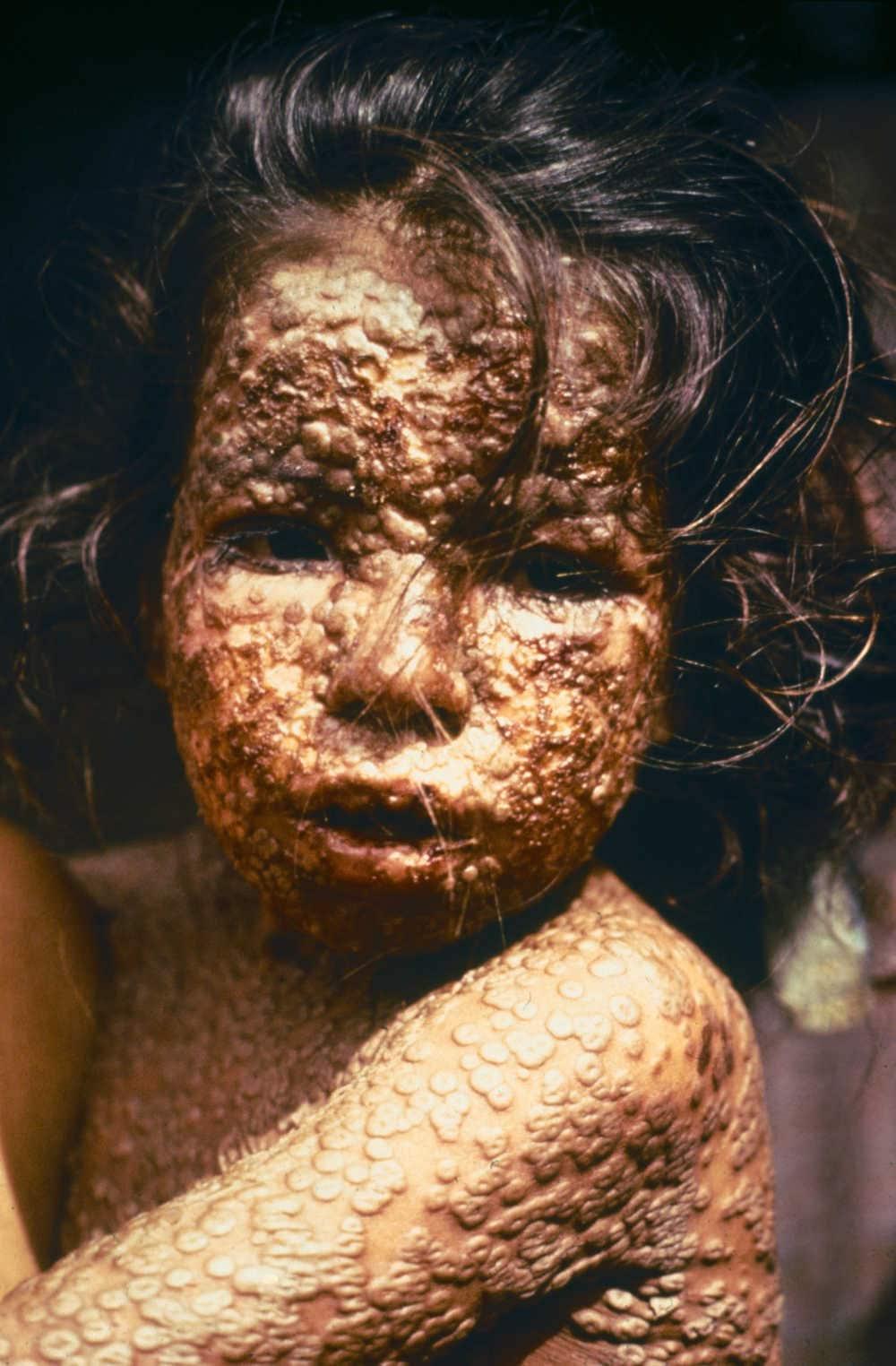 Bambino con il tipico rash del vaiolo