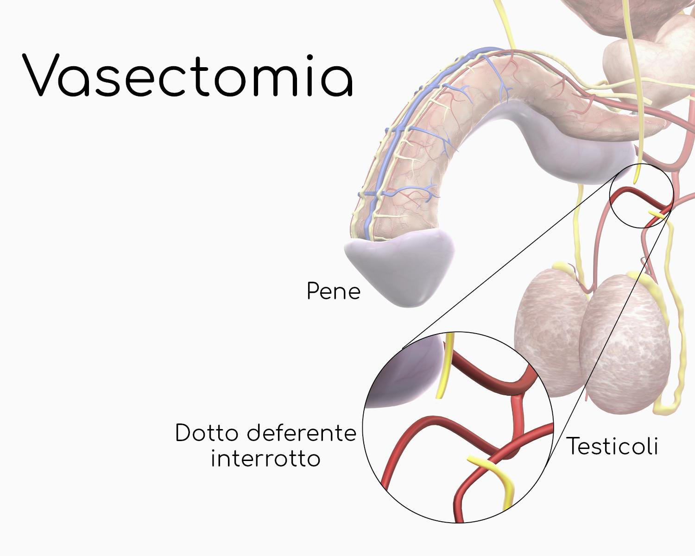 Vasectomia