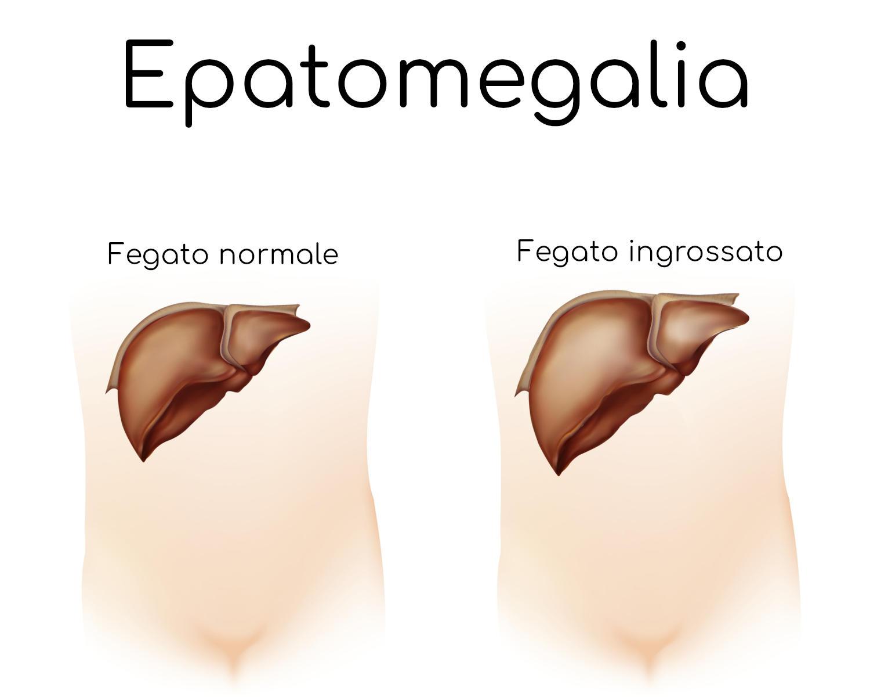 Epatomegalia