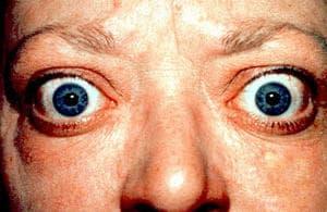 Oftalmopatia tiroidea