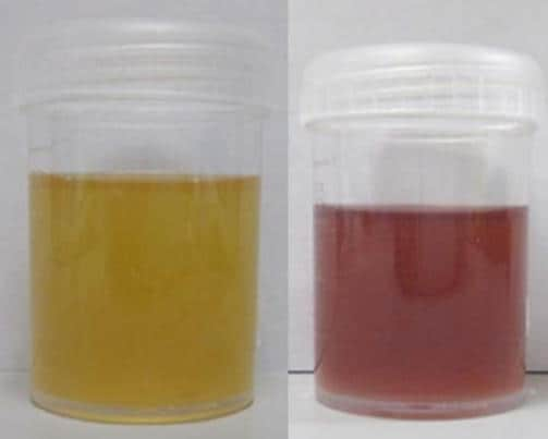 Urine caratteristiche di paziente affetto da porfiria