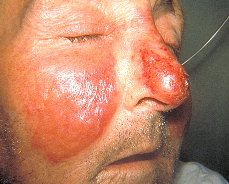 Erisipela sul viso