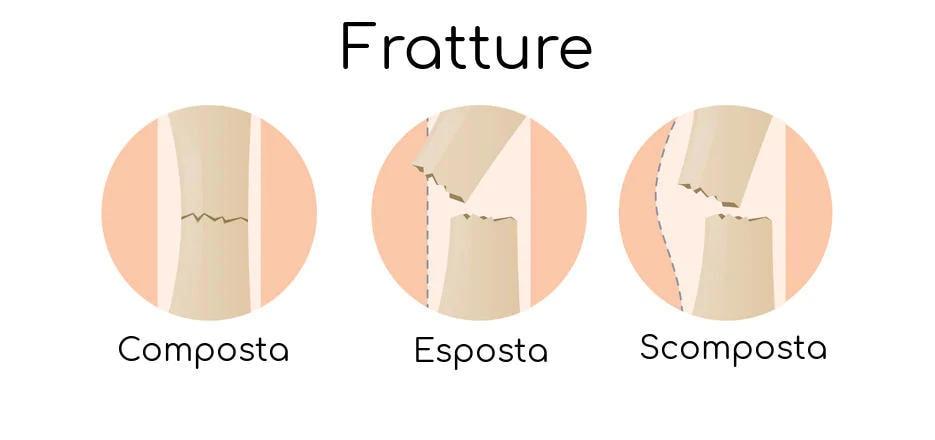 Fratture ossee composta, esposta e scomposta