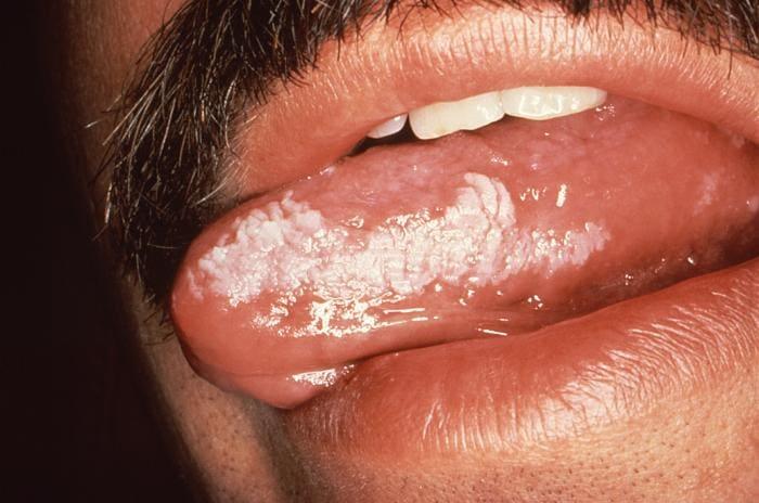 Leucoplachia sulla lingua