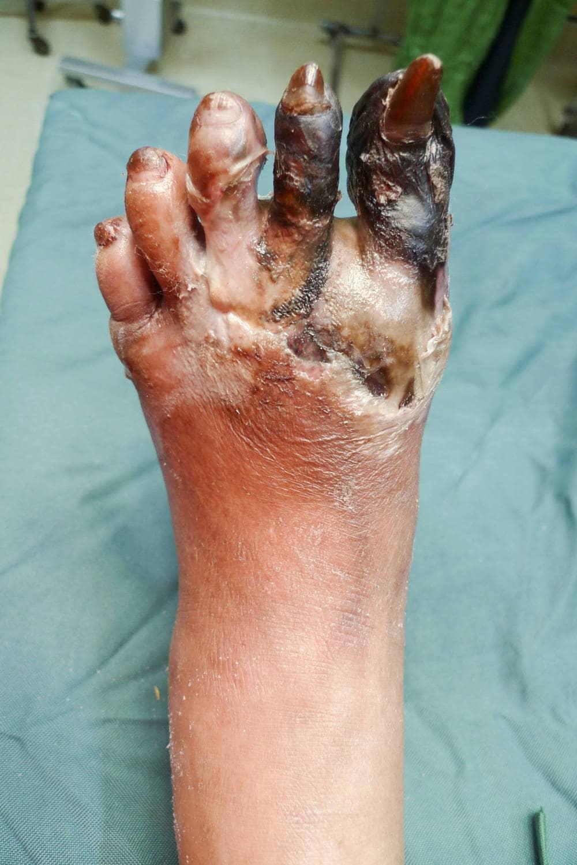 Cancrena al dito del piede