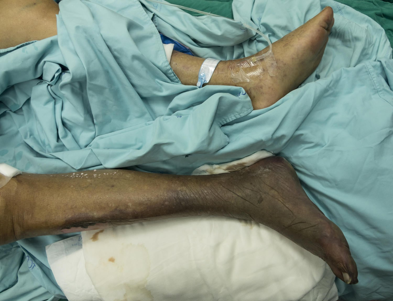 Cancrena gamba-piede
