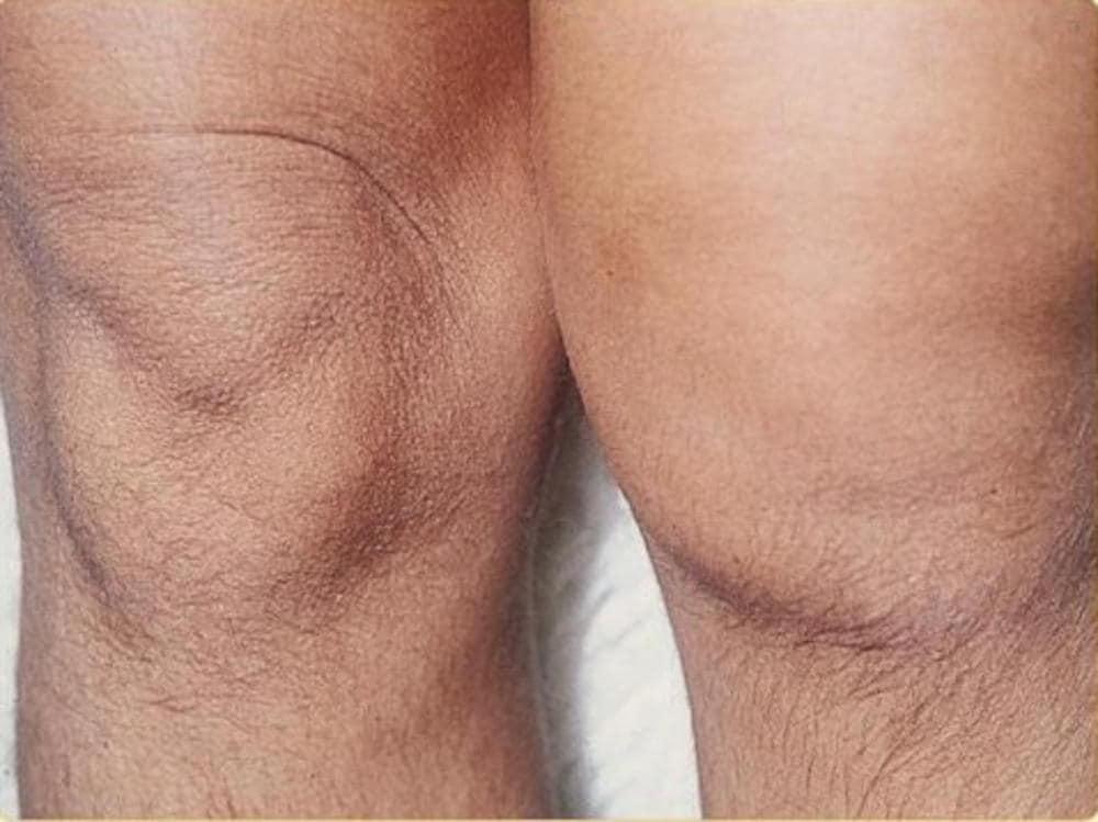 Artrite reattiva (ginocchio)