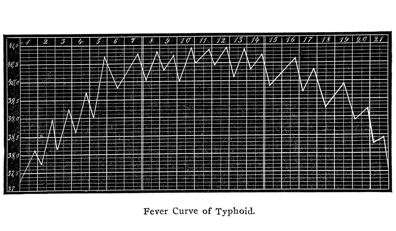 Caratteristico andamento della febbre in paziente affetto da tifo