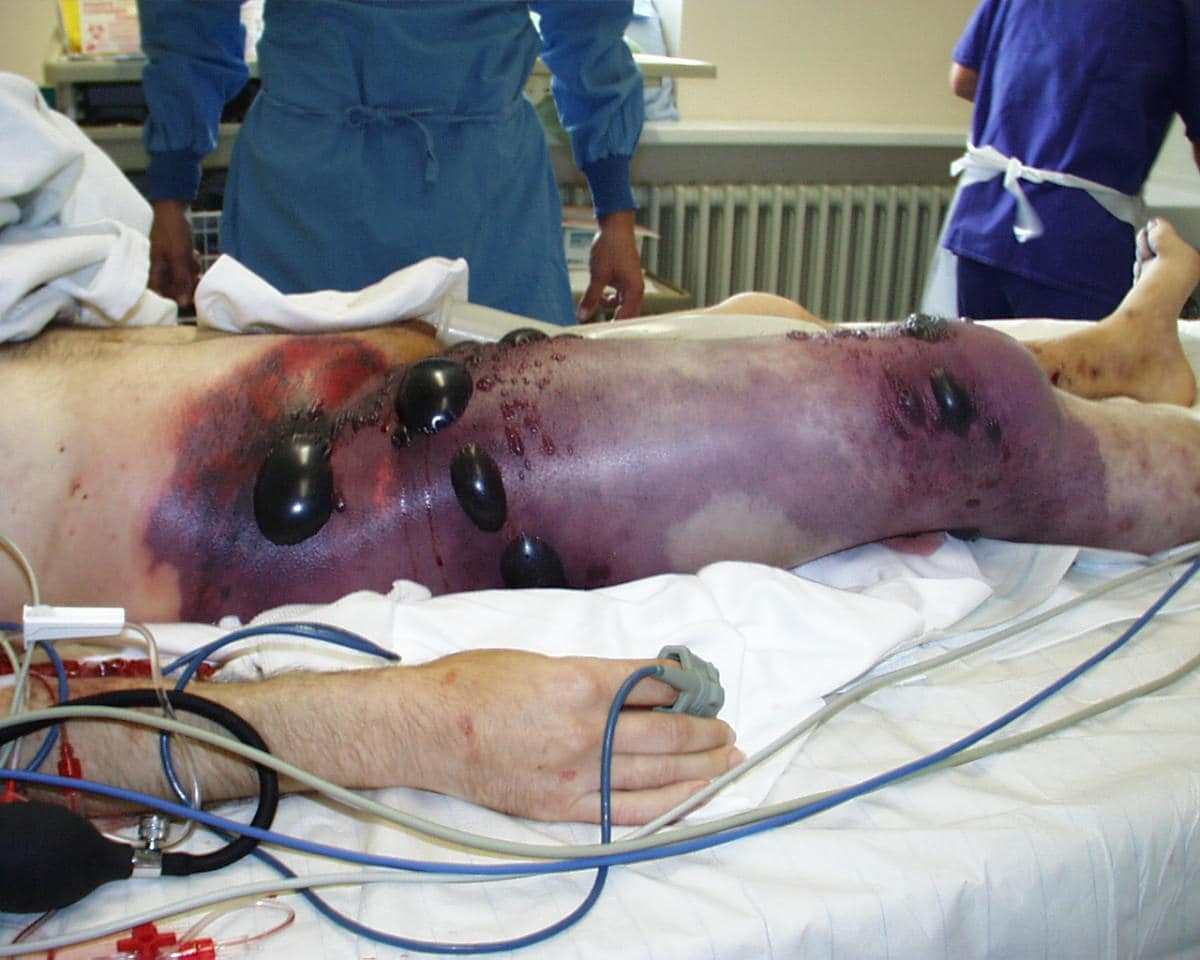Gangrena gassosa