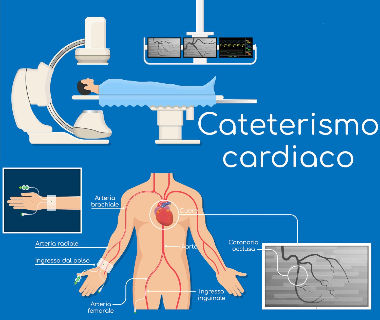 Cataterismo cardiaco
