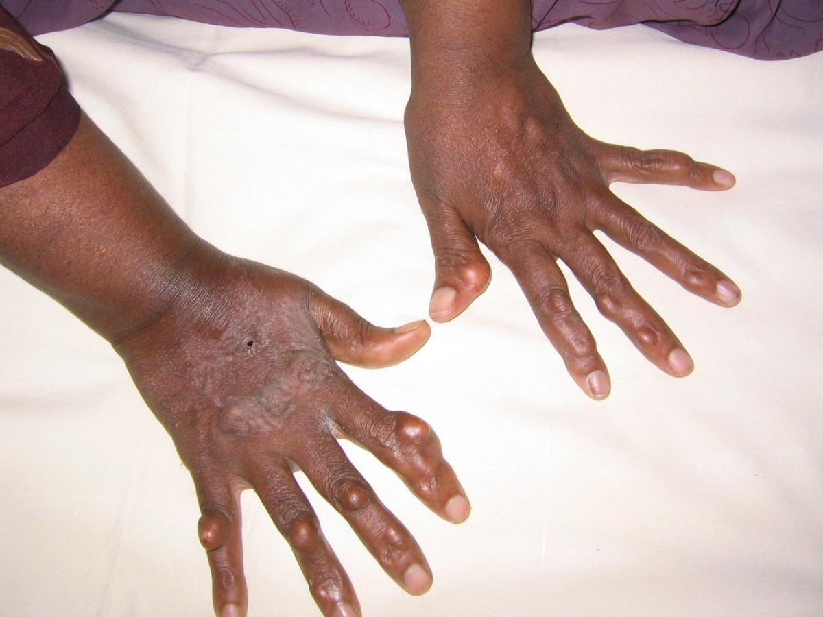 Xantomi sulle dita della mano